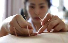 研究发现针灸确实能缓解慢性疼痛