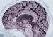 阿尔茨海默症可以预测吗?写作测试也许提供了答案